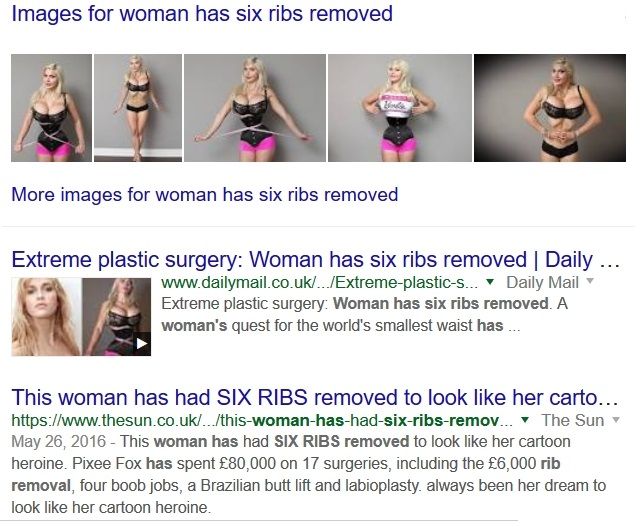 Unless my eyes deceive me, she had more surgery done than just having six  spare ribs removed. … Ah, yes, the second ghit tells more about what she  had done.